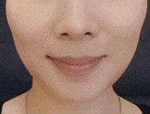 botox slim face