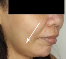 botox vs facelift