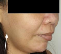 botox vs facelift patient