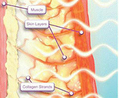 thermage heating top layer of the skin illustration