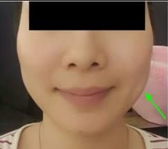 facelift vs botox patient