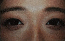 Patients can reduce false eye bags