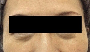 bulky lower eyelid under eye hollowing patient