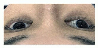 Patient with Vascular and pigmentation skin dark eye circles