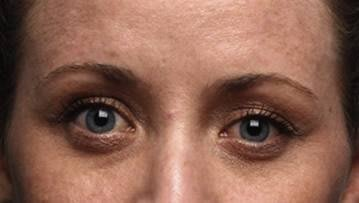 Female with bulky lower eyelid and tear trough sunkeness