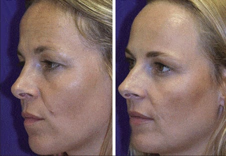 Botox differences between twins