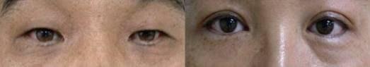 pigmented lower eyelids