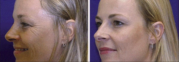 dynamic wrinkles effect