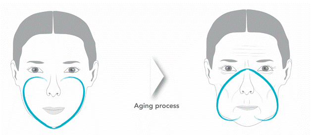 facelift vs botox