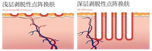 diagram superficial and deep ablative fractional resurfacing