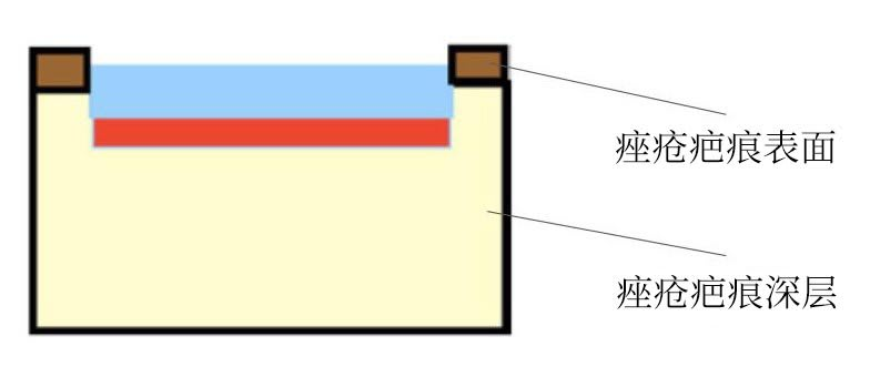 diagram ablative full beam laser