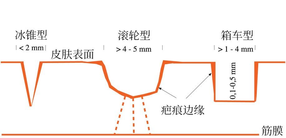 rf microneedling chinese