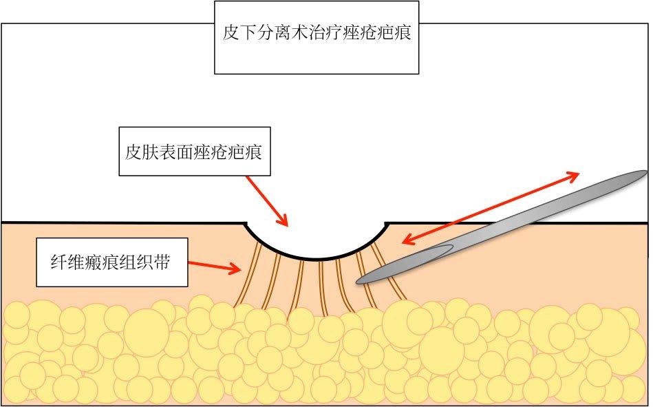 皮下分离术治疗痤疮疤痕
