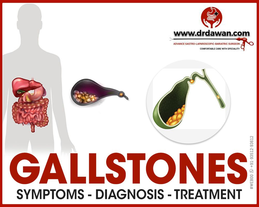 Symptoms and Treatment for Gallstones in Bikaner