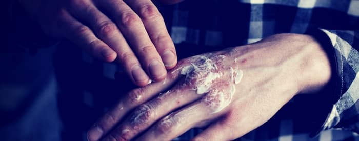 Psoriasis on the Hands
