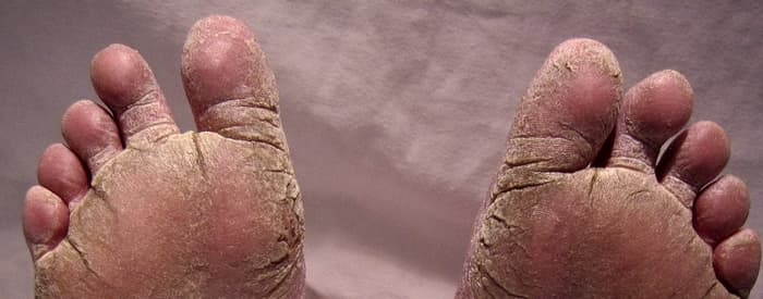 Psoriasis on the Feet