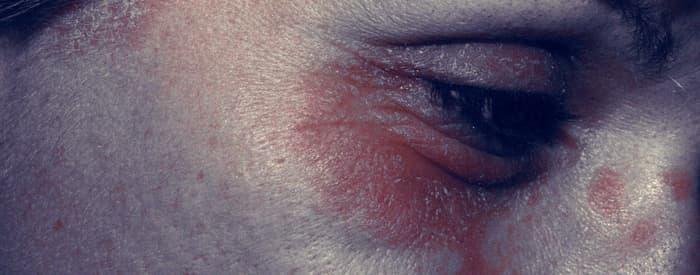 Psoriasis around the Eyes