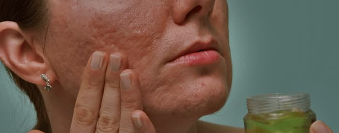 Scarring and Psoriasis