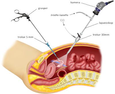 Operacja laparoskopowa