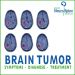 Brain Tumor Symptoms, Diagnose and Treatment