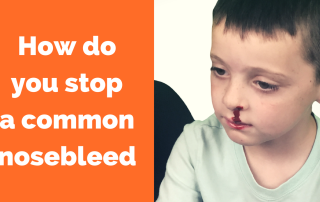 How to you stop a common nosebleed