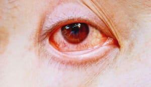 Intoxicated eye closeup