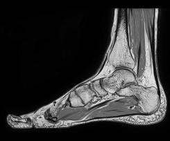 Itamar Gilboa, Body of Work ( feet )
