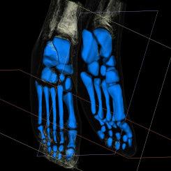 Itamar Gilboa, Body of Work - Feet