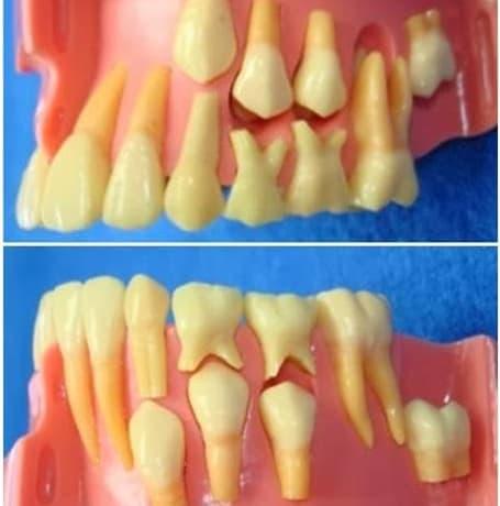 Los dientes de leche ¿ensayo o realidad?