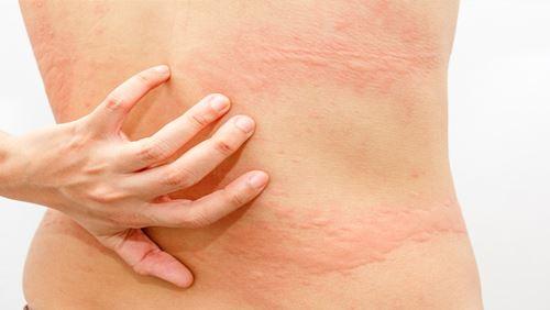 Alergi – Penyebab, Gejala, dan Bahayanya
