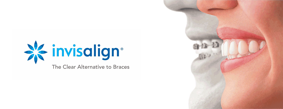Invisalign Braces Alternative