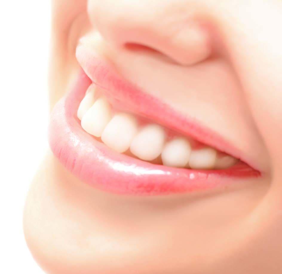 Smile Design in Tirupathi