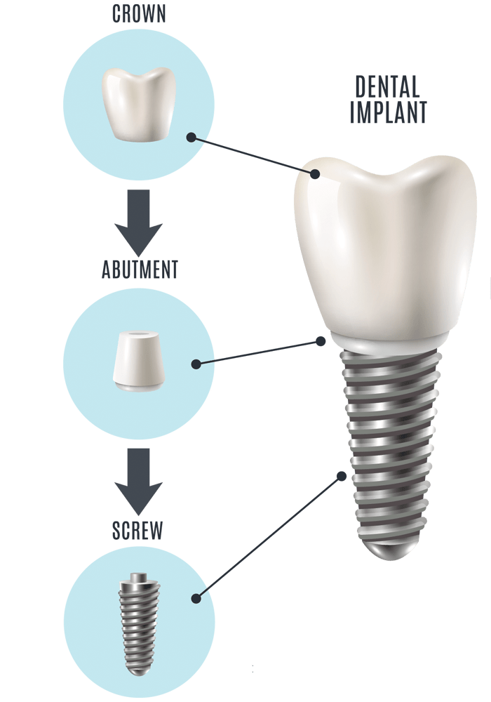 Implant for Fixed teeth in missing tooth area
