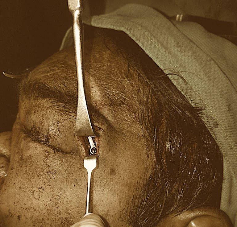 Oral Surgeries Tirupathi