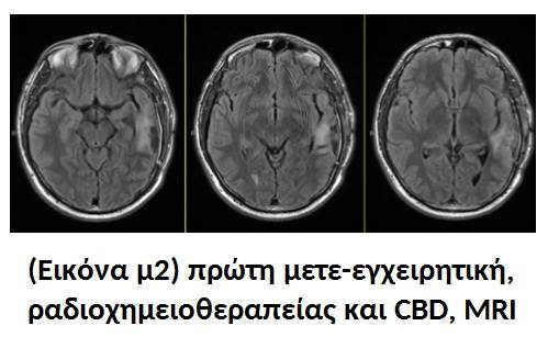 Κλινικά Αποτελέσματα : Ραδιοχημειοθεραπεία μαζί με Κανναβιδιόλη (CBD) 14