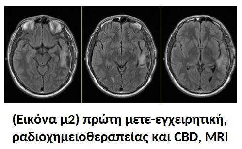 Κλινικά Αποτελέσματα : Ραδιοχημειοθεραπεία μαζί με Κανναβιδιόλη (CBD) 2
