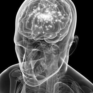Brain-Epilepsy-300x300