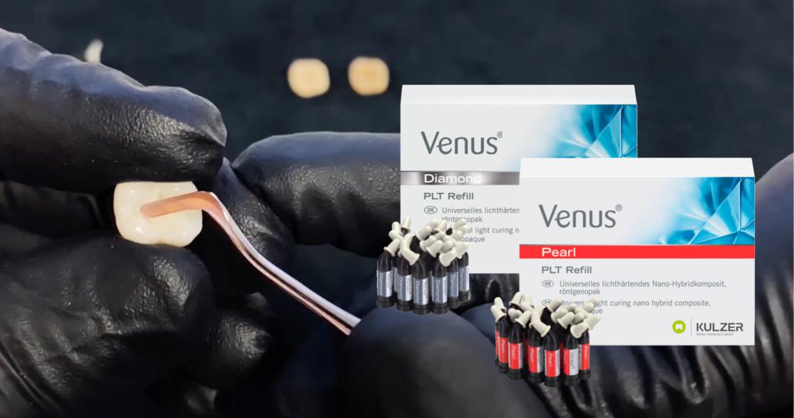 Ny kompositt for molarområdet: Venus Diamond/Venus Pearl ONE Shade