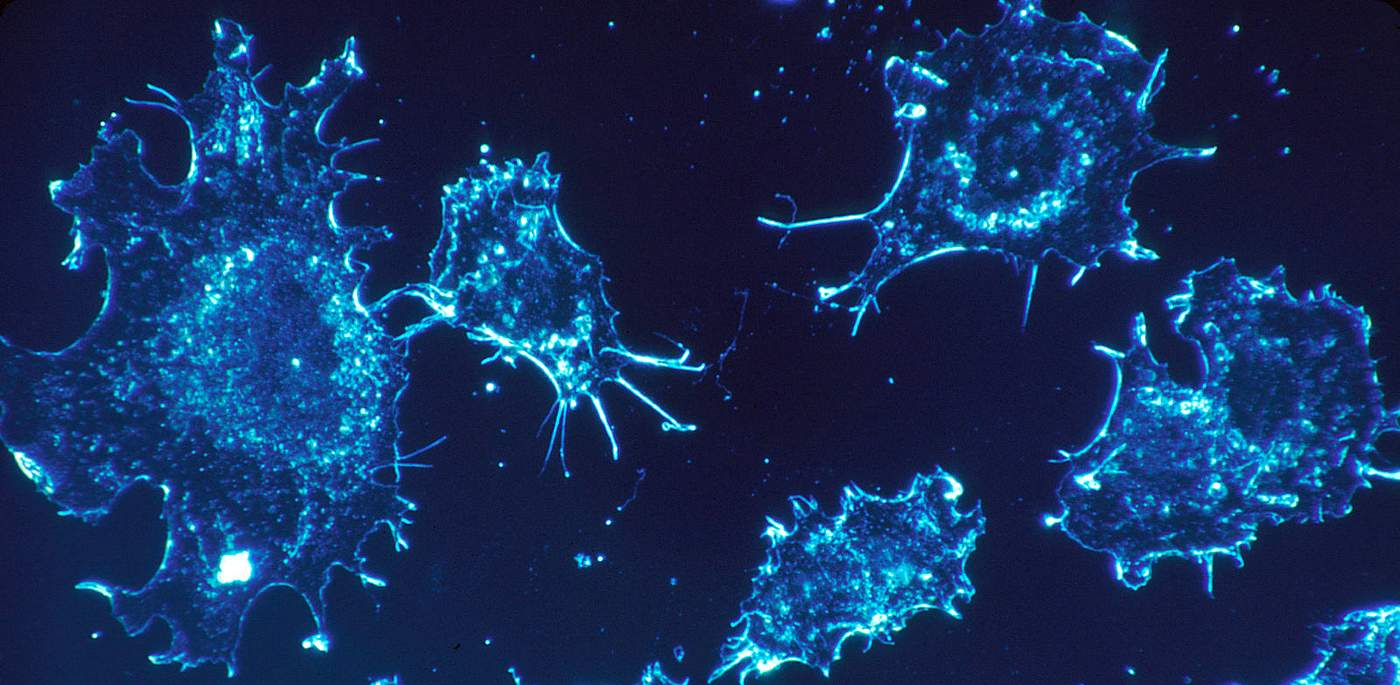 New Brain Cancer Immunotherapy Shows Promise in Human Trial – Most Patients Saw No Tumor Growth For 3 Years