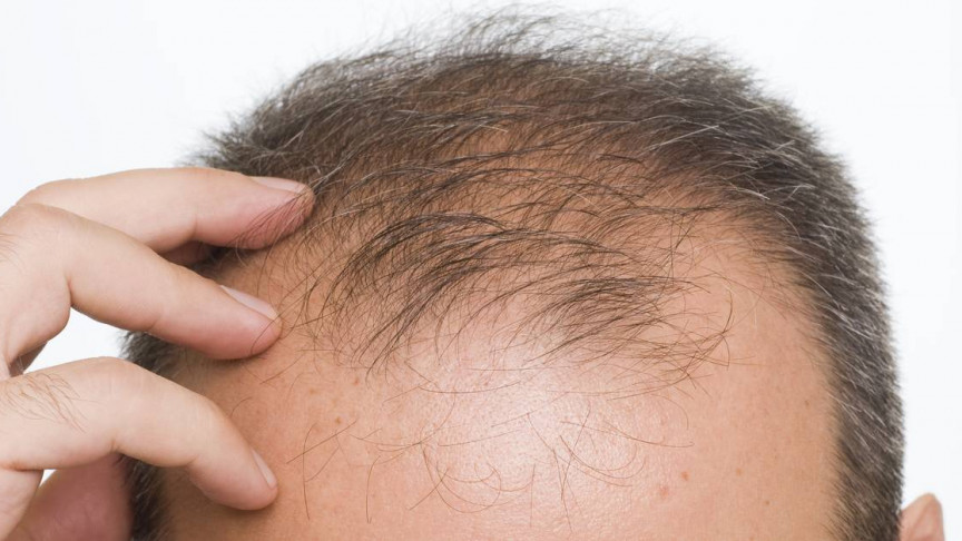 A Cure for Baldness May Lie in Engineering Stem-Cells That Regenerate