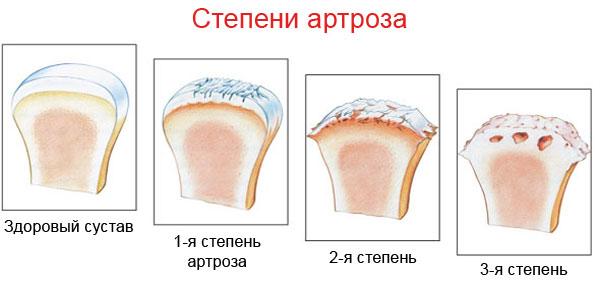 Умеренный синовит коленного сустава как лечить