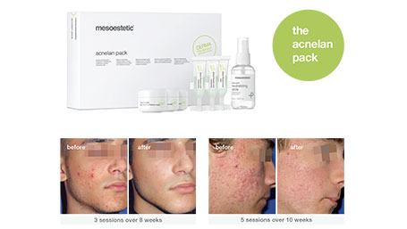 Acnelan: The Acne Treatment That Really Works