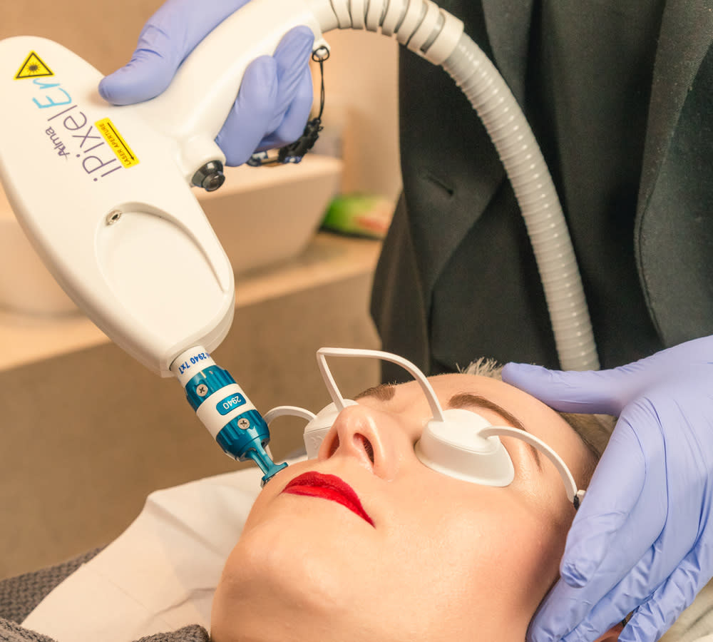 Laser Skin Resurfacing and Rejuvenation