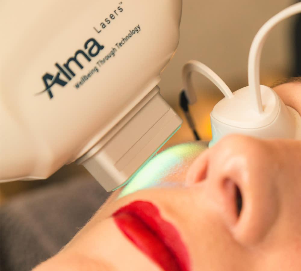 Laser Treatment for Hyperpigmentation