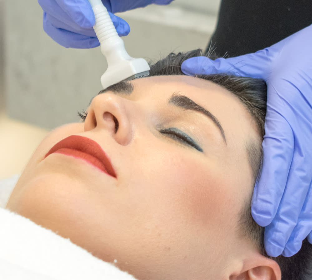 DermaStamp® Growth Factor Induced Therapy (GFIT)