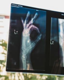 Röngenbild einer Hand - Sportverletzungen vorbeugen
