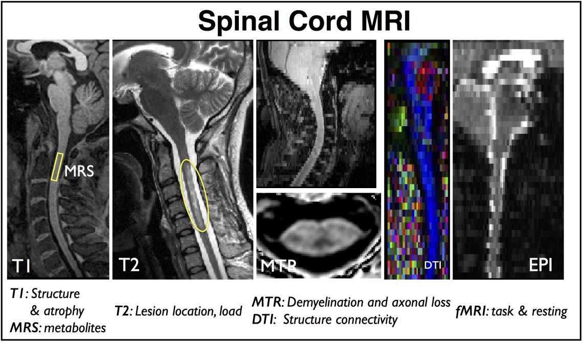 Quantitative spinal cord MRI