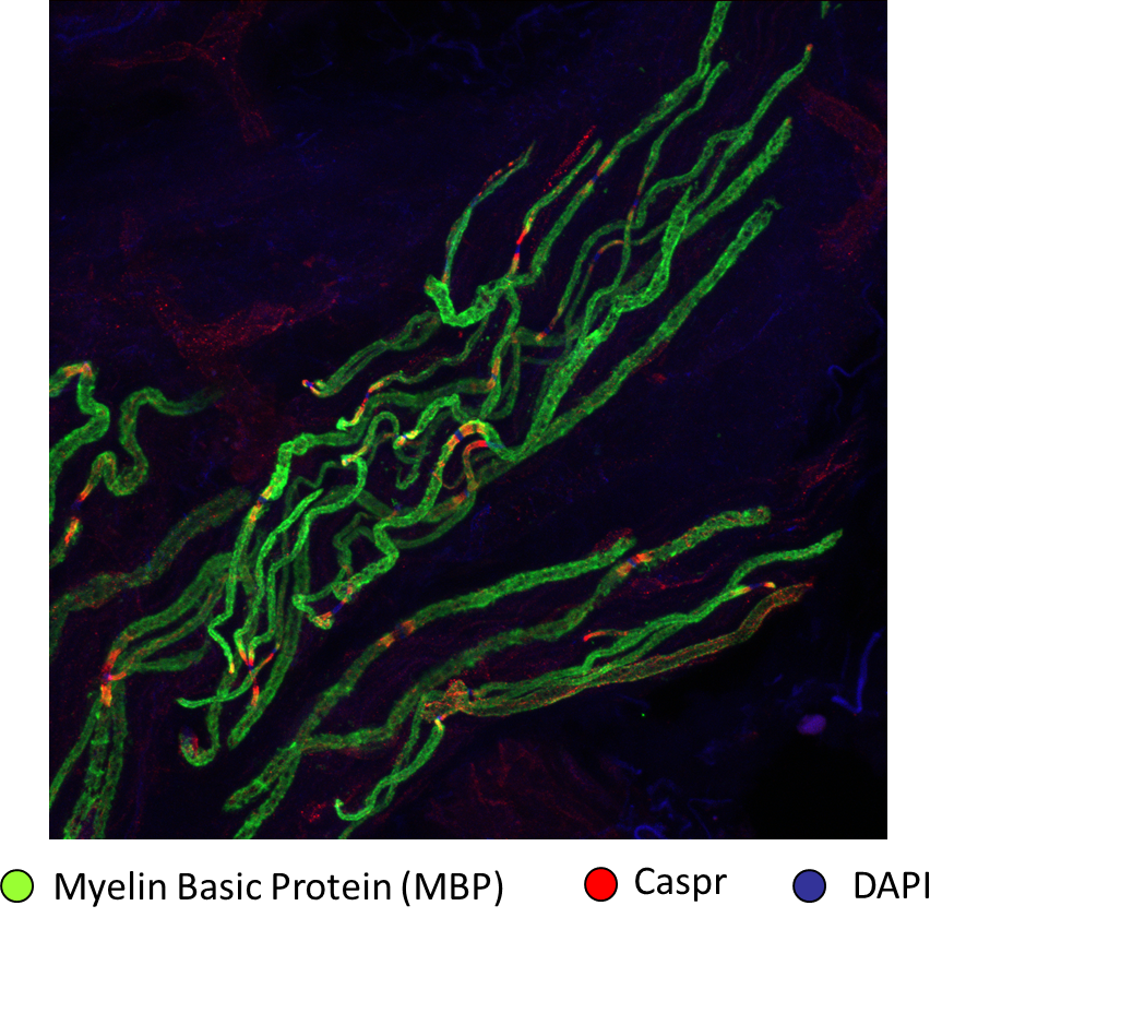Dermal nerve fibre bundle stained with myelin basic protein (MBP, green) and contactin associated protein (CASPR red) to reveal nodes of Ranvier
