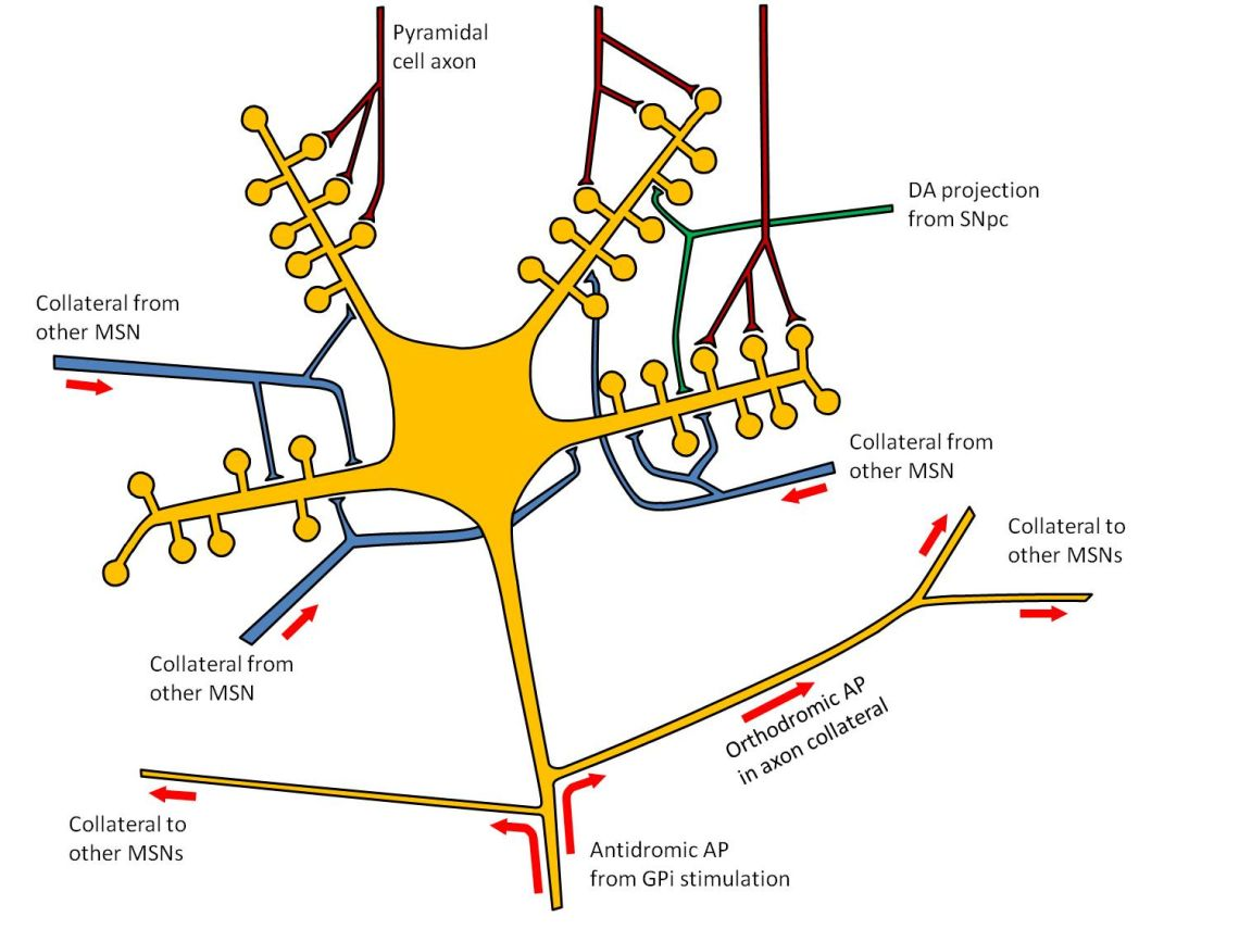 A new theory of the mechanism of pallidal deep brain stimulation.  Retrograde activation of striatal medium spiny neuronal like that shown here causes widespread activation of inhibitory axon collaterals (J Neurosci 2015;35:13043-13052).
