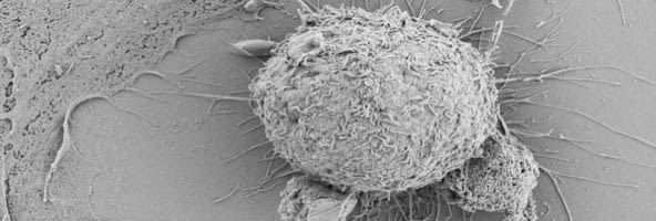 Scanning electron micrograph of peripheral blood TCR Va7.2+ T cells interacting with primary human airway epithelial cells in air liquid interface culture.
